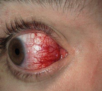eyejuice